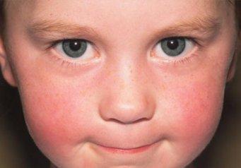 Красное лицо у ребенка