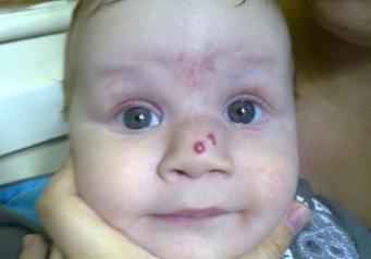 Переносица опухла у ребенка