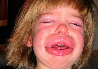 Почему отекло лицо у ребенка фото