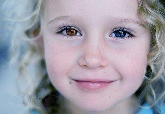 Почему у ребенка разные глаза