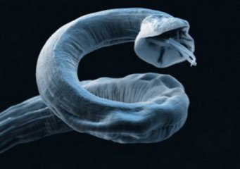 Глисты в организме клиника