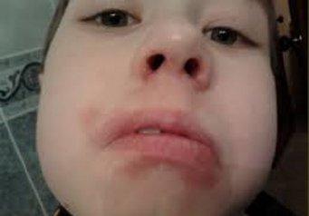 У ребенка на губе белое пятно фото как лечить