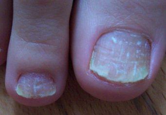 Больница грибок ногтей