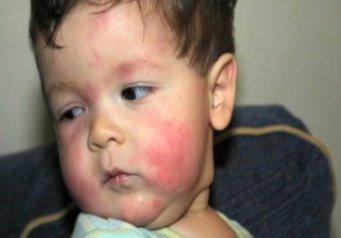на что может быть пищевая аллергия