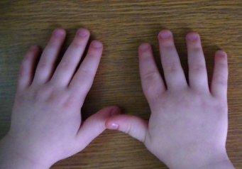 у ребенка опух сустав на пальце